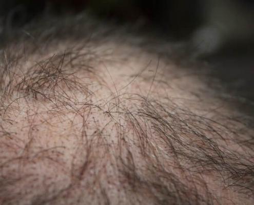 Formen des Haarausfalls - diffuser Haarausfall