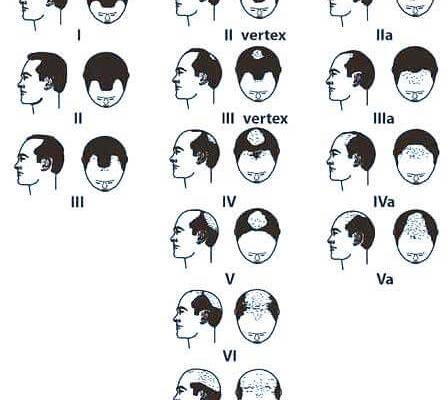 Genetisch bedingte Alopezie beim Mann