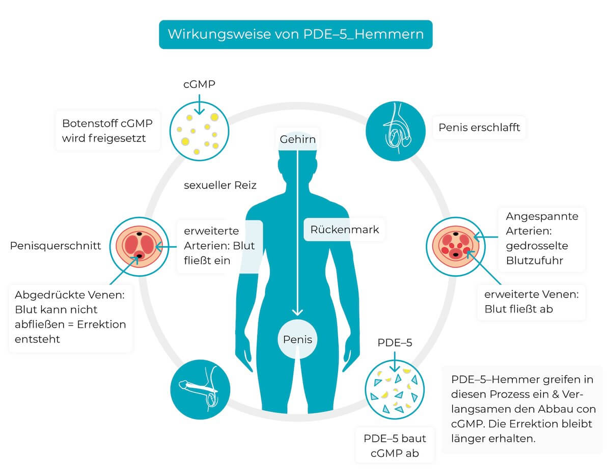 PDE-5 Hemmer Behandlung Erektionsstörungen Erektile Dysfunktion